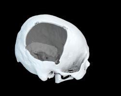 GuoSkull-opening-small.jpg